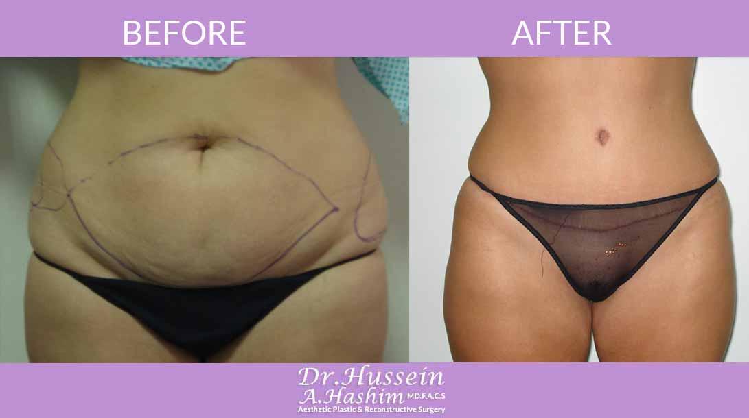 image 1 Avant après de la plastie abdominale Liban