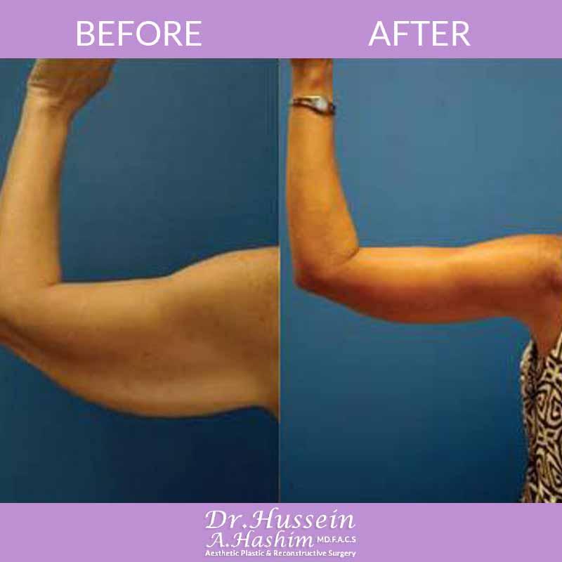 image 1 Avant après lifting des bras Liban