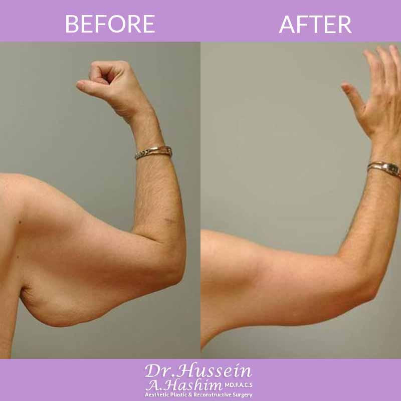 image 3 Avant après lifting des bras Liban