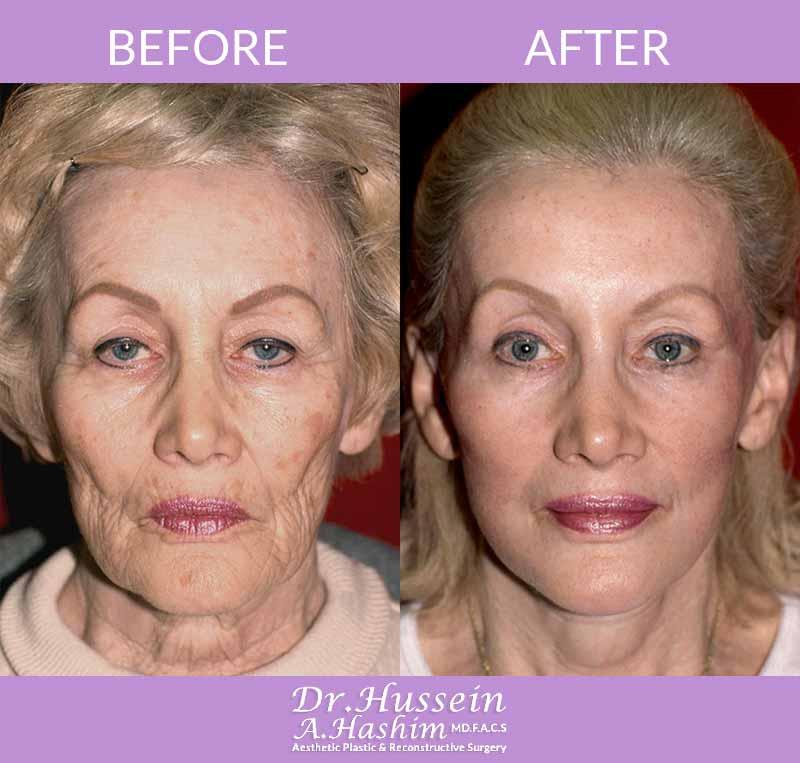 image 1 Avant après procédure de lifting de visage Liban