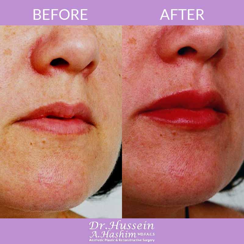 image 2 Avant après augmentation des lèvres Liban