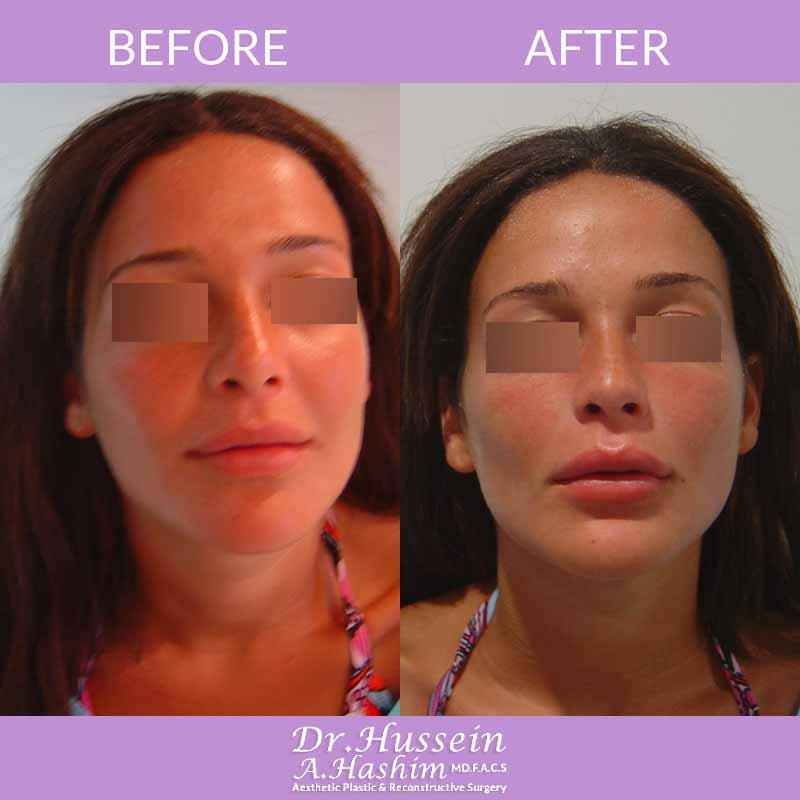 image 1 Avant après augmentation des lèvres Liban