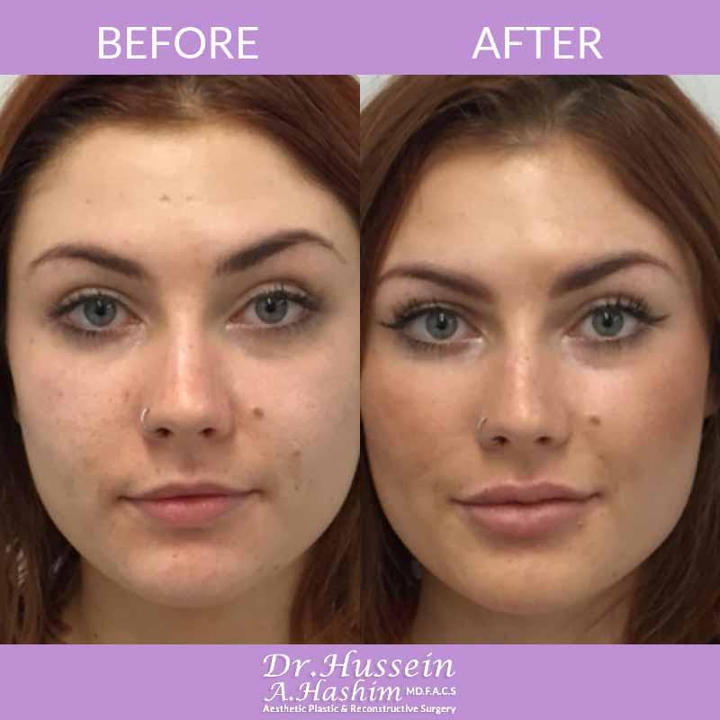 image 3 Avant après augmentation des lèvres Liban