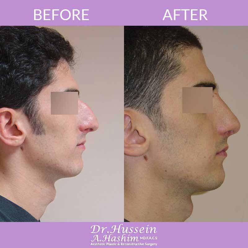image 2 Avant après remodelage du nez et rhinoplastie liban