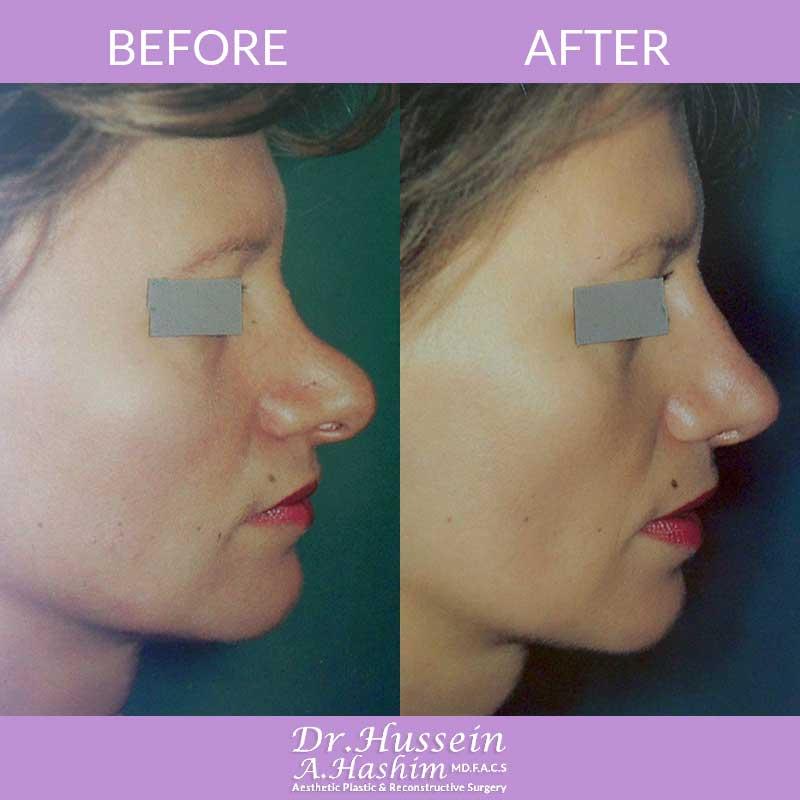 image 1 Avant après remodelage du nez et nasoplastie Liban