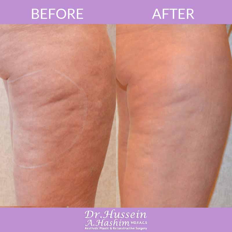 image 5 Avant après resserrement de la peau au Liban