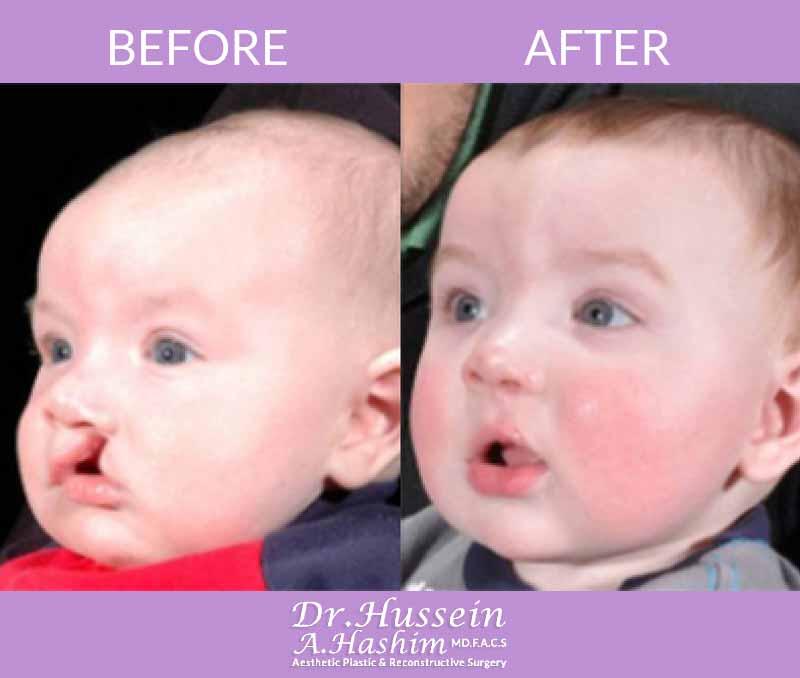 image 1 Avant après chirurgie de la fente labiale Liban