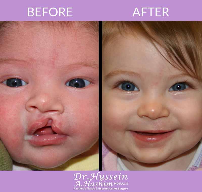 image 2 Avant après chirurgie de la fente labiale Liban