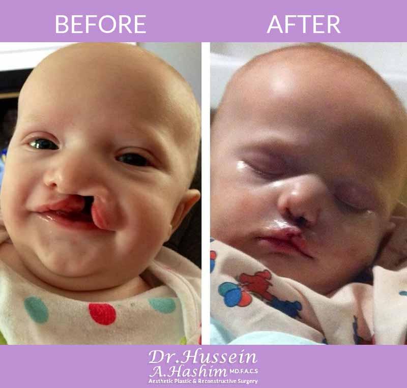 image 3 Avant après chirurgie de la fente labiale Liban