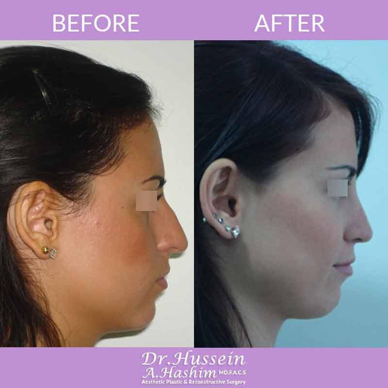image 4 Avant après de remodelage du nez et d'une nasoplastie au Liban