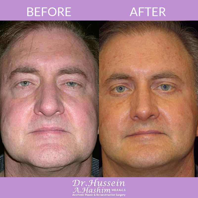 image 5 Avant après procédure de lifting de visage Liban