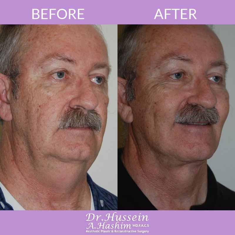 image 4 Avant après procédure de lifting de visage Liban