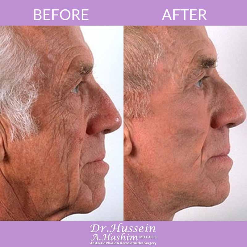 image 6 Avant après procédure de lifting de visage Liban